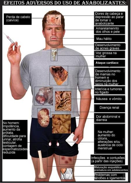 efeitos-dos-anabolizantes